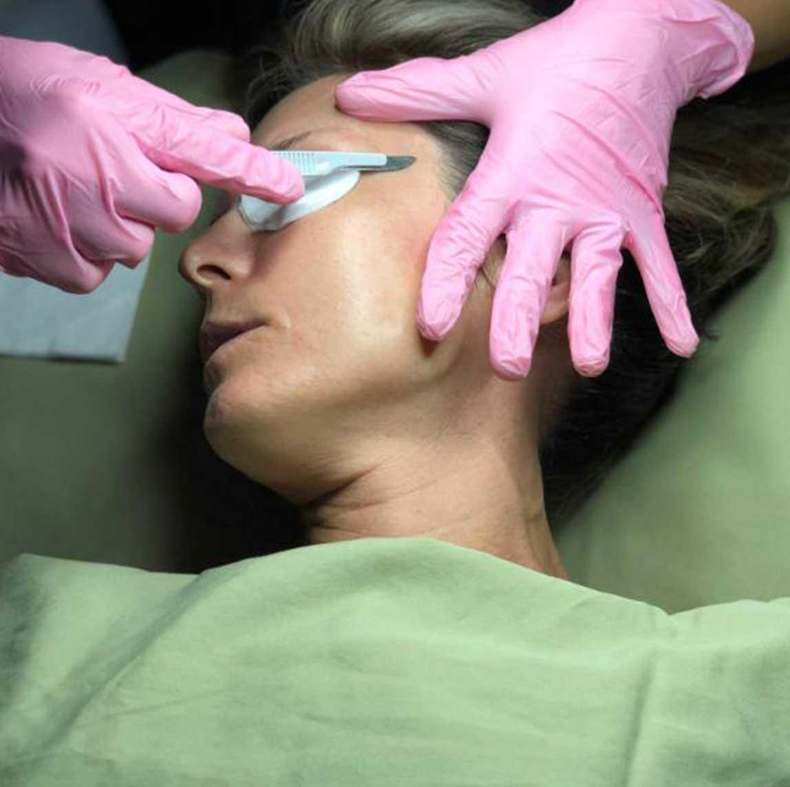 Dermaplaning treatment in progess   Purely You Spa Diamond Glow Facial Spa Membership